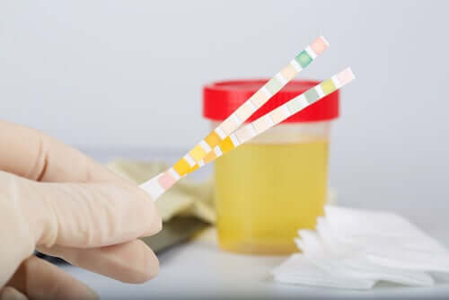 Hvad er pH i urin?