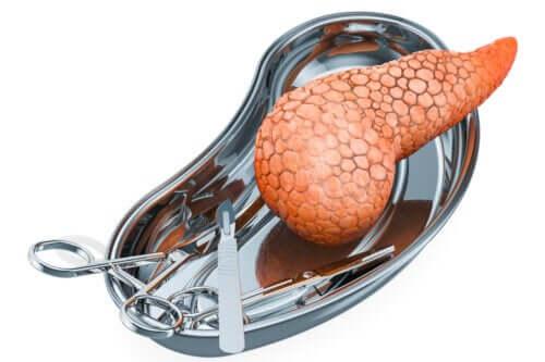 Transplantation af bugspytkirtlen: Hvorfor udføres det, og hvilke risici er der?
