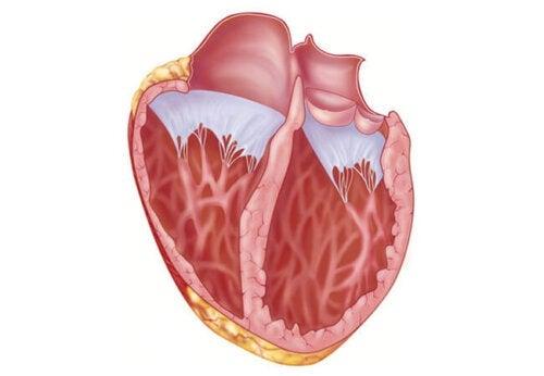 Hvad du bør vide om dilateret kardiomyopati