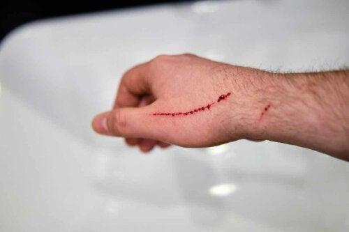 Såreksudat fra sår på hånd